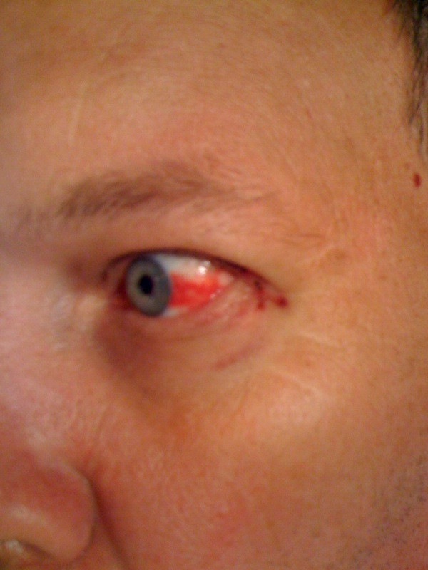 Evans Eye-Graphic
